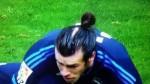 Gareth Bale se someterá a un injerto capilar, según The Sun - Noticias de wayne rooney